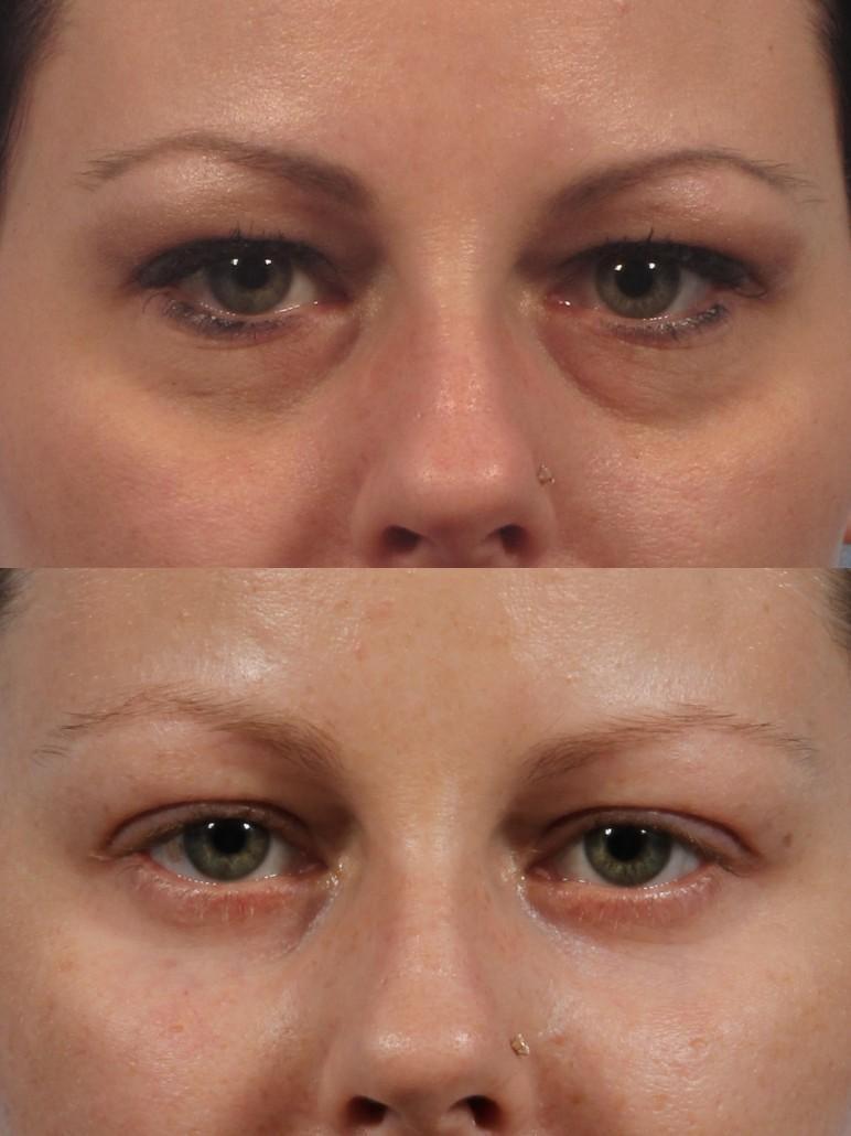 Under Eye Makeup Brush: Dark Circles New York City