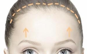 bicoronal-brow