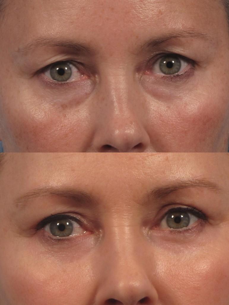 expert eye lift surgeon ny