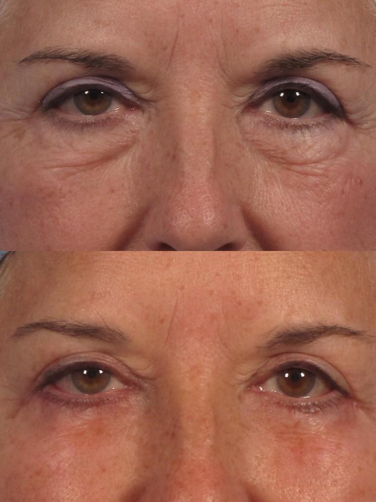 Expert Eye Lift Surgeon Ny Manhattan Westchester