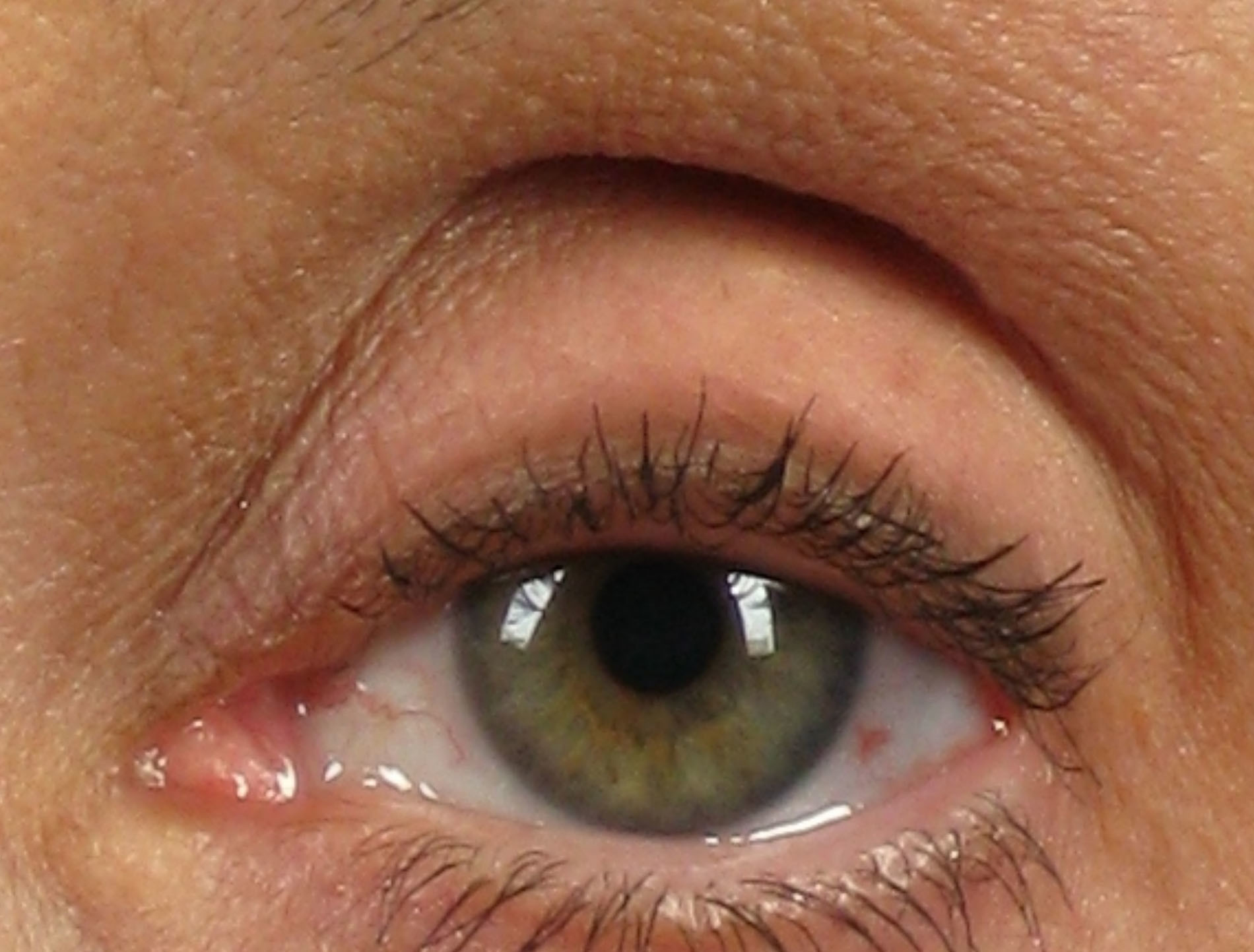 steroid eye drops for episcleritis