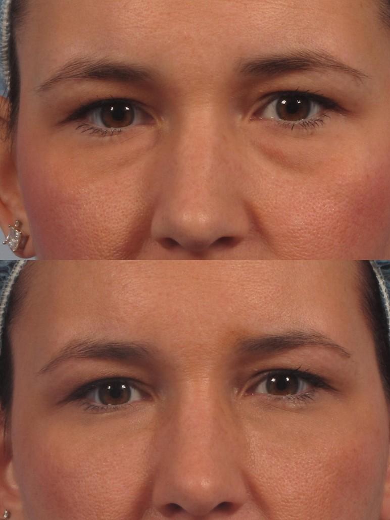 Botox Filler Microneedling Doctor Ny Manhattan Westchester