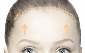 trichophytic-brow-lift-300x188