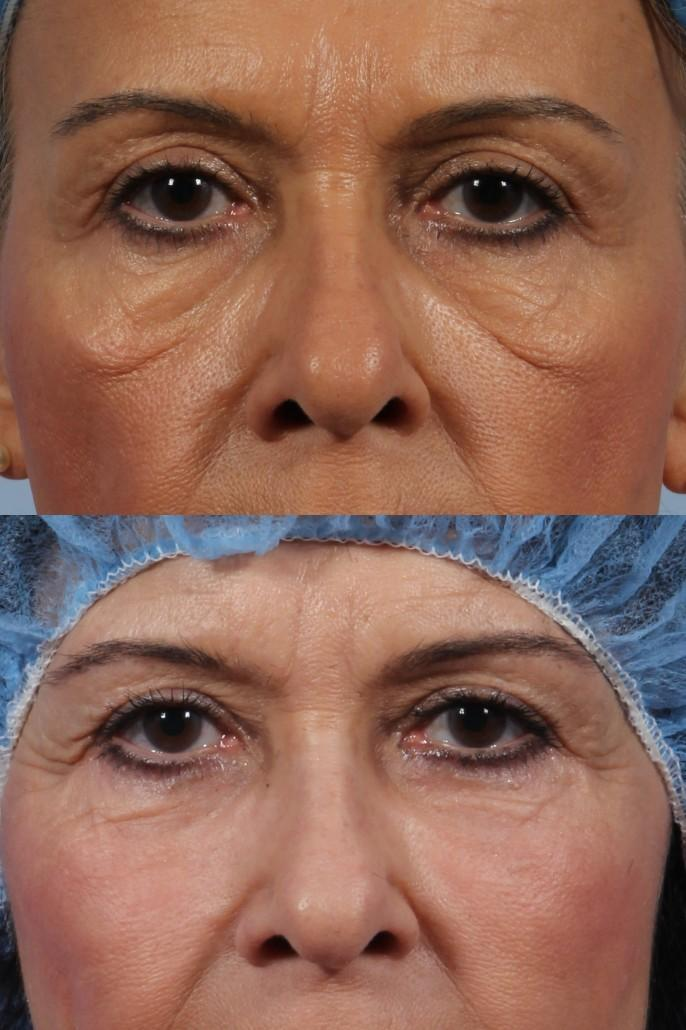 Forum on this topic: The Eye Surgery You Should Avoid, the-eye-surgery-you-should-avoid/
