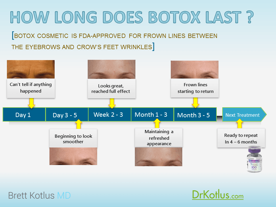 botox duration