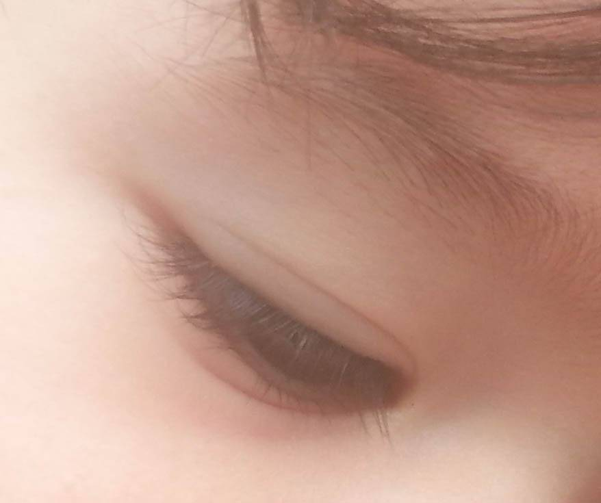 eyelid crease of youth