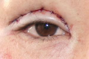 asian eye surgery