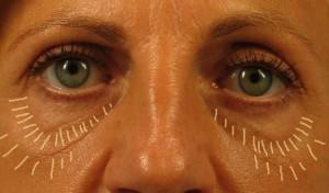 under eye fat grafting