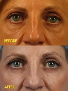 before and after under-eye fat