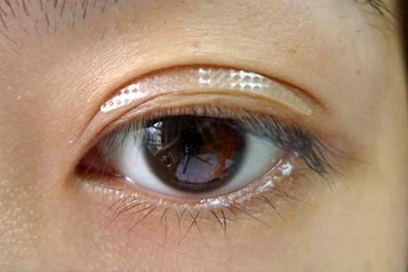 Asian eye double lid glue