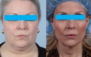 bariatric wrinkles