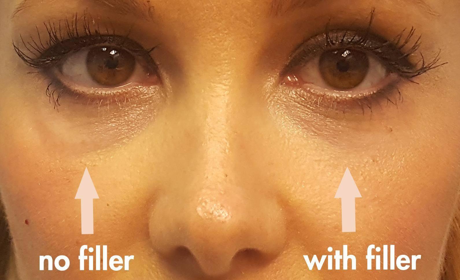 Solution Puffy Under Eyes After Filler Injection Dr Brett Kotlus
