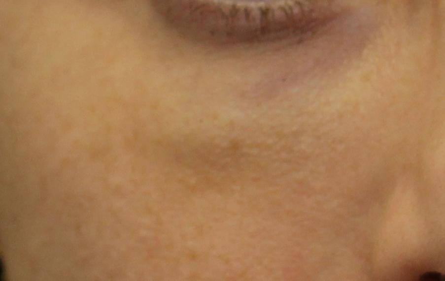Solution: Puffy Under Eyes After Filler Injection | Dr ...