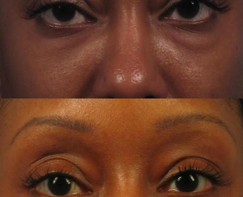 Dr. brett kotlus cosmetic oculoplastic lower eye lift