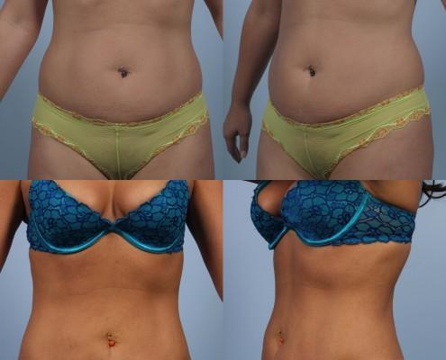 Dr. brett kotlus cosmetic oculoplastic liposuction abdomen laser