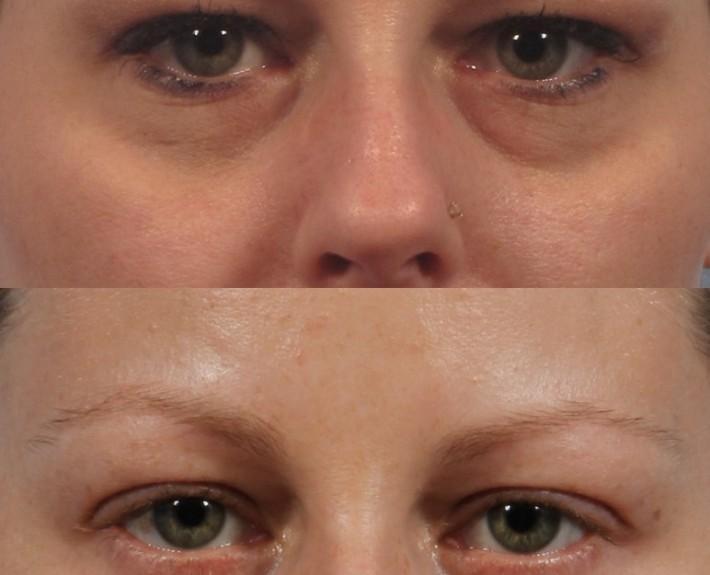 Dr. brett kotlus cosmetic oculoplastic blepharoplasty lower ny
