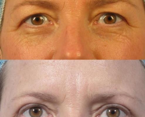 Dr. brett kotlus cosmetic oculoplastic upper blepharoplasty