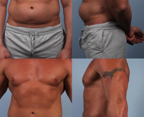 Dr. brett kotlus cosmetic oculoplastic liposuction male bodybuilder