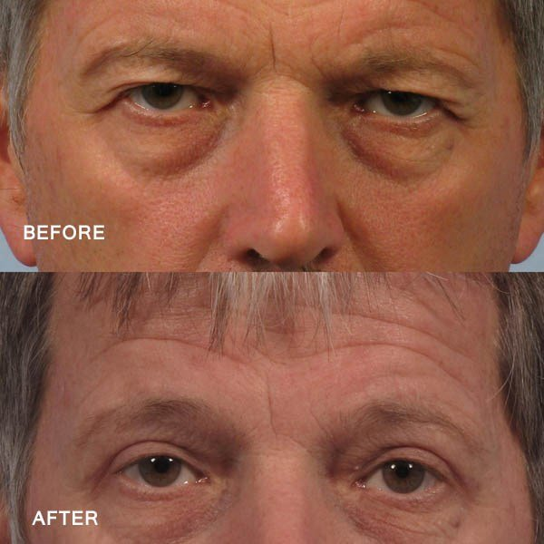 Dr. brett kotlus cosmetic oculoplastic upper eye job man