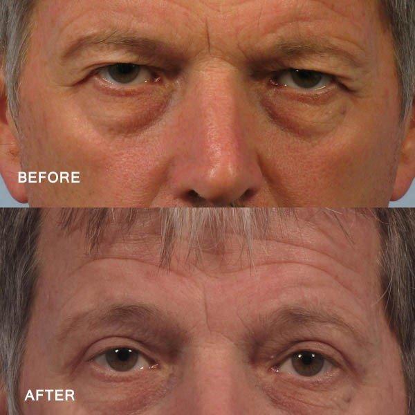 Dr. brett kotlus cosmetic oculoplastic upper eye job man