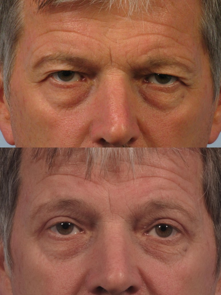 Cosmetic Oculoplastic Eyelid Lift Dr Brett Kotlus