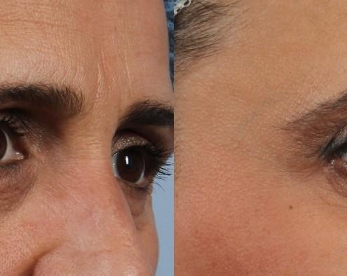 Dr. brett kotlus cosmetic oculoplastic smile wrinkles botox nyc