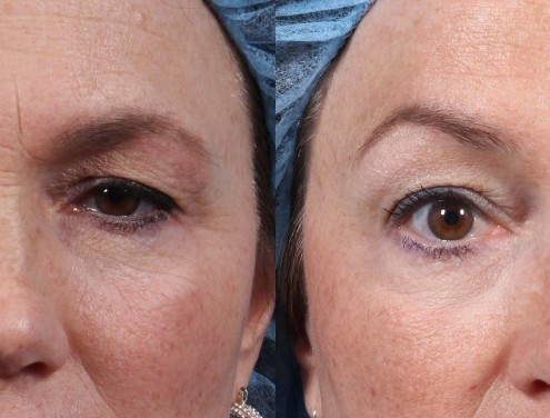 Dr. brett kotlus cosmetic oculoplastic botox brow