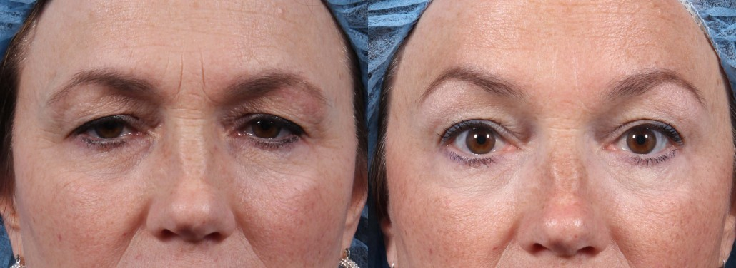Wrinkle Treatment Fillers Botox Laser Microneedling Dr