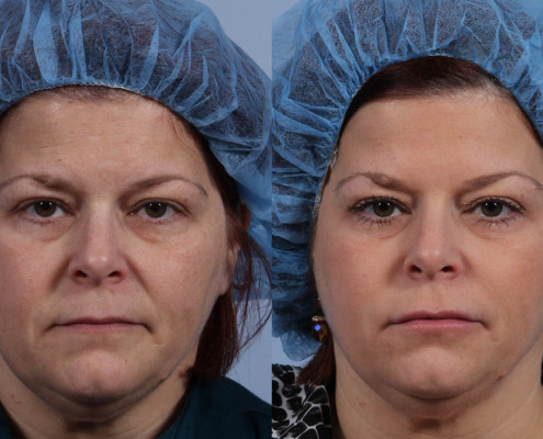Dr. brett kotlus cosmetic oculoplastic botox