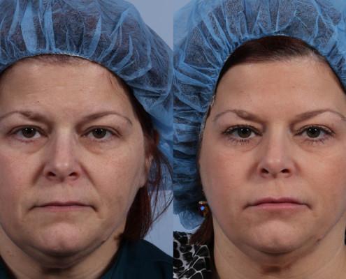 Dr. brett kotlus cosmetic oculoplastic dysport brows