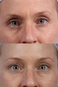 Dr. brett kotlus cosmetic oculoplastic nyc botox eyes