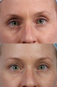 Dr. brett kotlus cosmetic oculoplastic botox new york