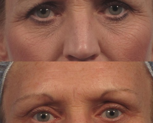 eyebrow lift surgery nyc