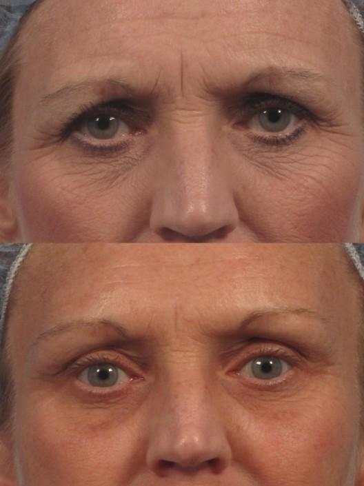 eyebrow lift surgery nyc