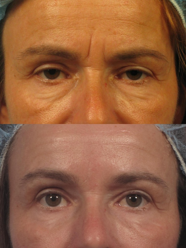 Can Botox In Forehead Cause Bags Under Eyes