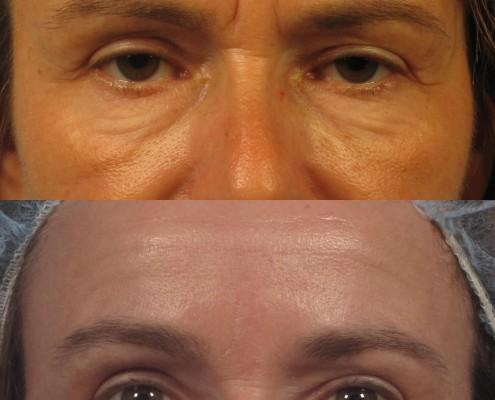 dr. brett kotlus nonsurgical eyelid