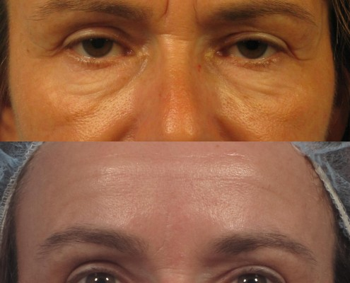 dr. brett kotlus under eye cheek filler botox