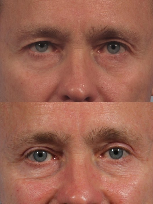 Dr. brett kotlus cosmetic oculoplastic upper eyelid male