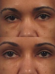 dr. brett kotlus under eye bags