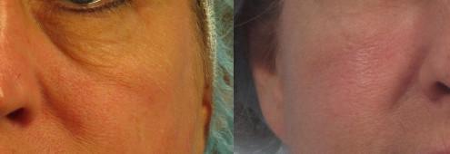 Dr. brett kotlus cosmetic oculoplastic juvederm voluma