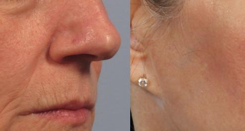 Dr. brett kotlus cosmetic oculoplastic juvederm