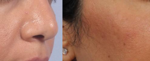 Dr. brett kotlus cosmetic oculoplastic cheek sculptra