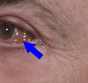 Dr. brett kotlus cosmetic oculoplastic chemosis