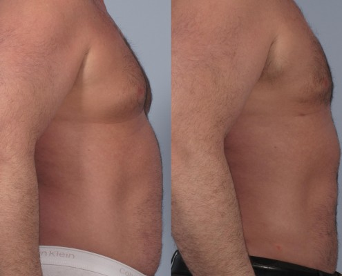 Dr. brett kotlus cosmetic oculoplastic liposuction man