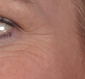 Dr. brett kotlus cosmetic oculoplastic crows feet