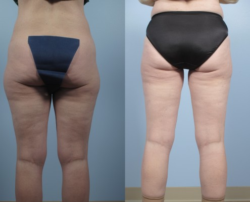 Dr. brett kotlus cosmetic oculoplastic liposuction outer thighs ny