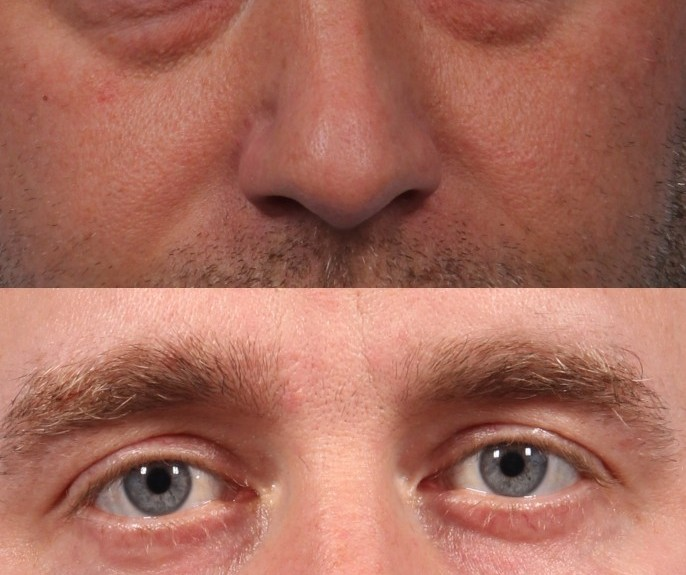 Dr. brett kotlus cosmetic oculoplastic lower blepharoplasty nyc