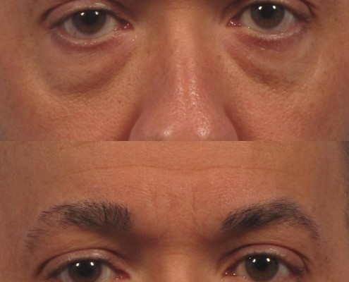 dr. brett kotlus under eye juvederm