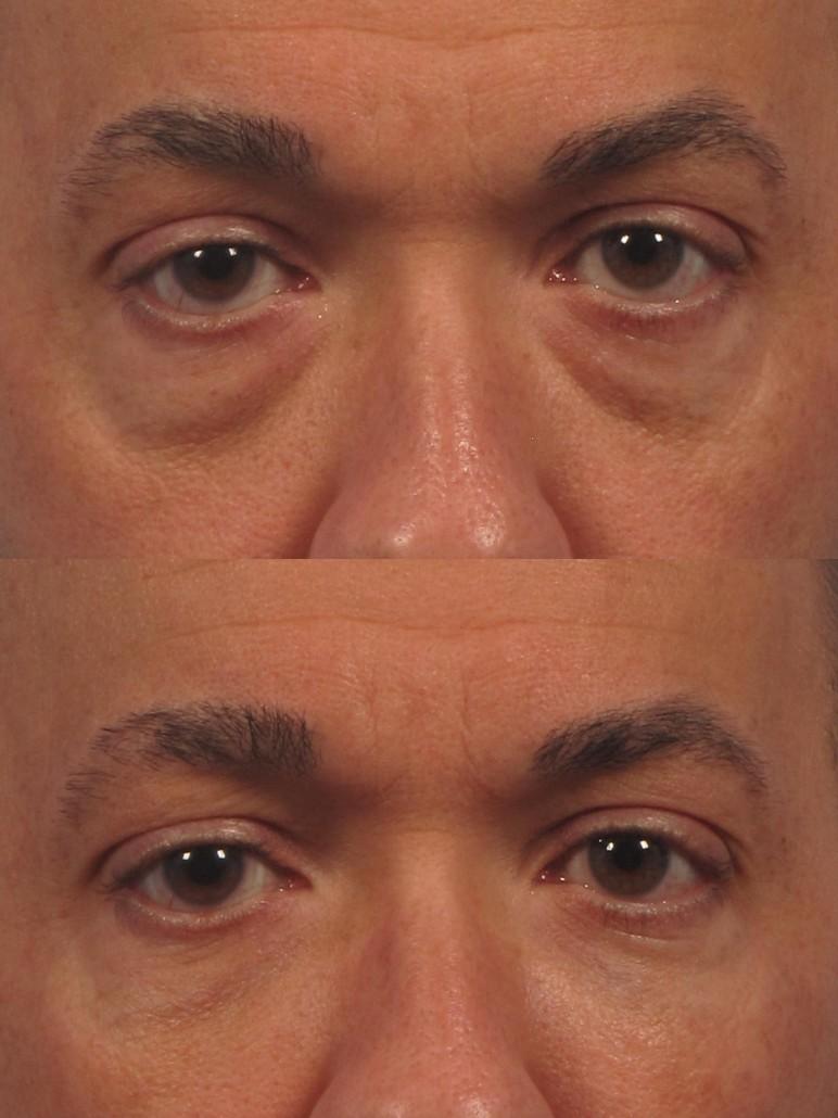 Under Eye Makeup Brush: Cosmetic Oculoplastic Eyelid Lift