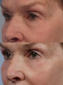 dr. brett kotlus blepharoplasty lower